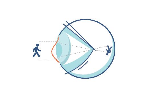 Симптомы астигматизма - искажения зрения