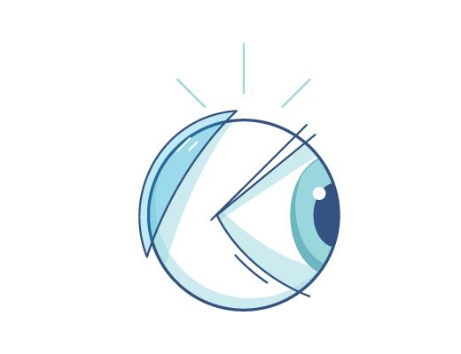 Об анатомии глаза