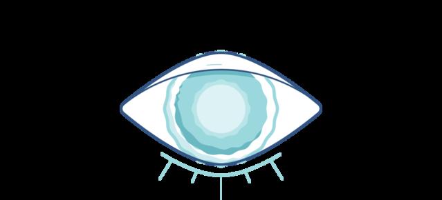 Симптомы катаракты - затуманенного зрения