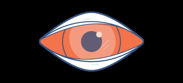 """Симптомы конъюнктивита - """"розового глаза"""""""