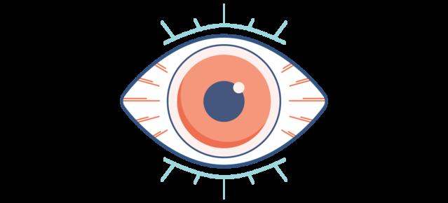 Симптомы синдрома сухого глаза - покраснение и припухлость