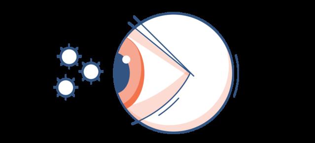 Аллергия глаза (аллергический конъюнктивит): симптомы