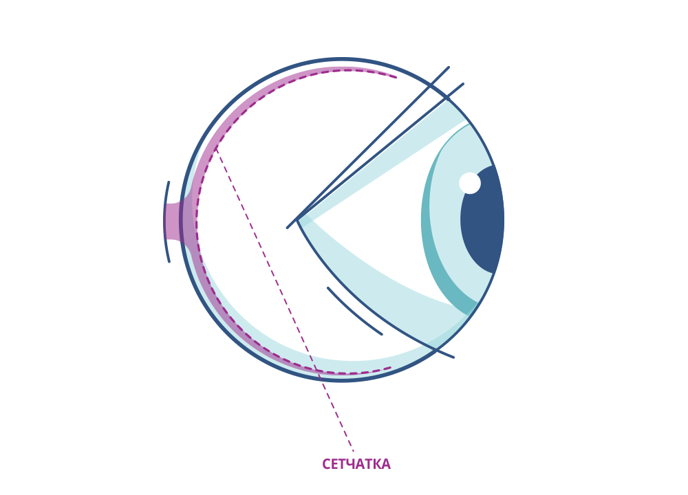 Сетчатка глаза